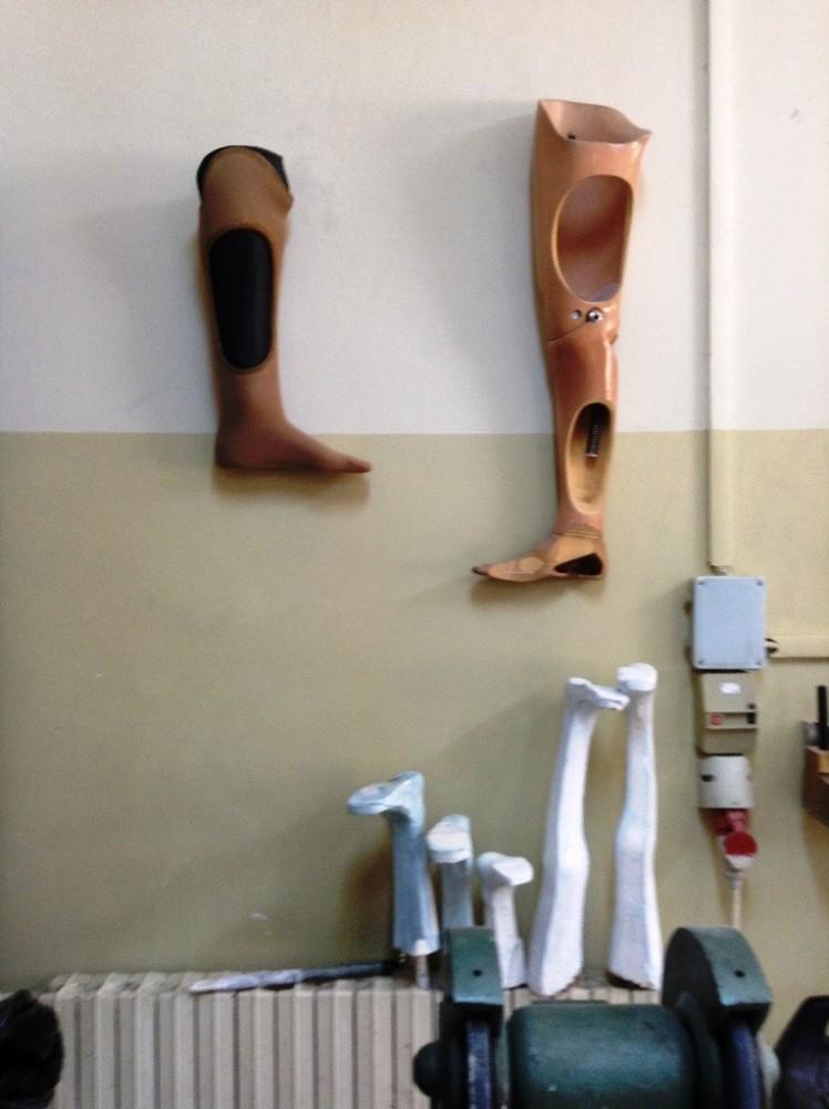 prosthetics2